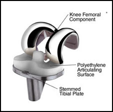 Knee Replacement Surgery Hardware